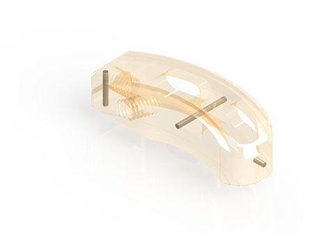 implant cage TLIF SWINGO T