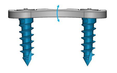 epaisseur implant Origin avec système de plaque verrouillable